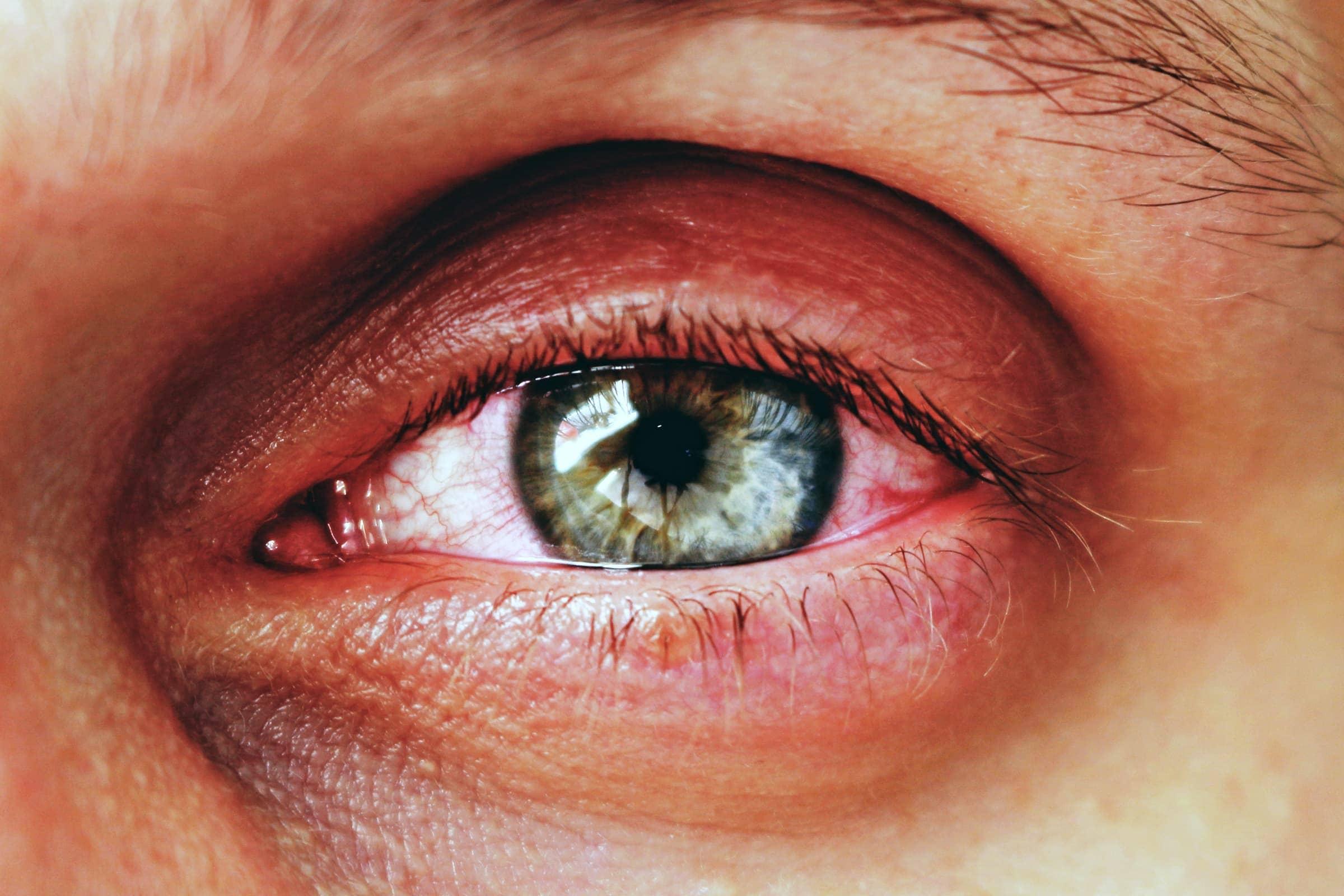 Bindehautentzündung (infektiöse Konjunktivitis) – rote juckende Augen
