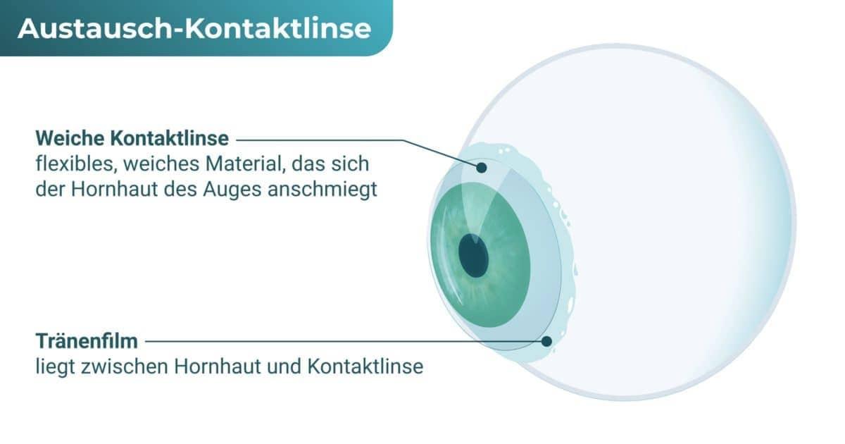 Austausch-Kontaktlinse / Austauschlinse