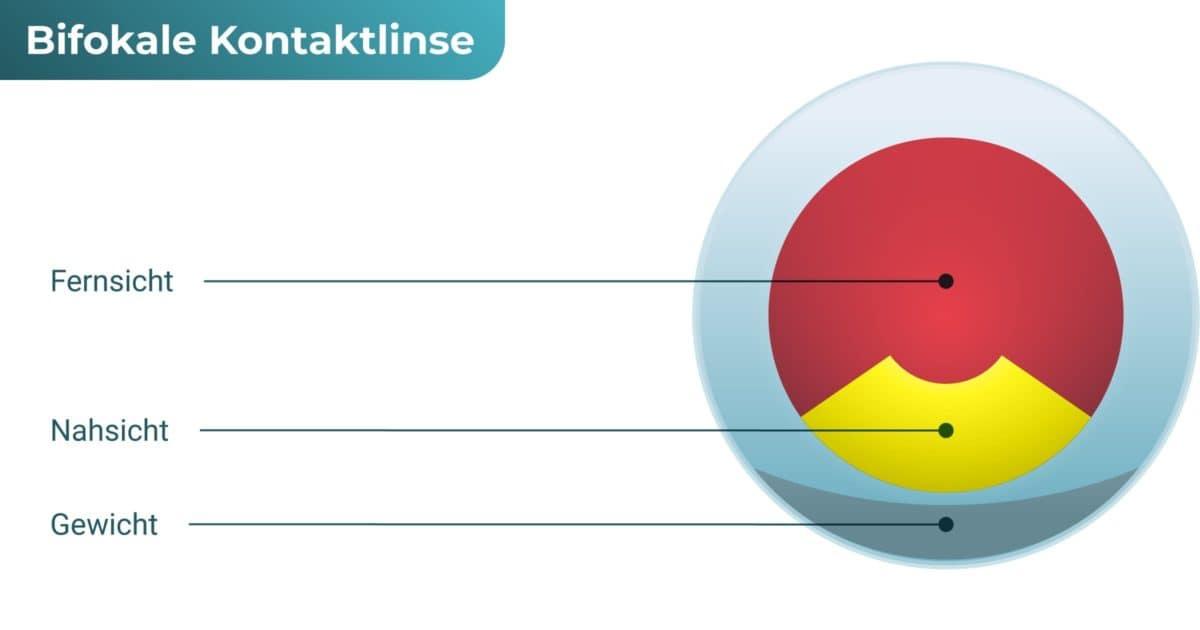 Bifokal Kontaktlinse (alternierend)