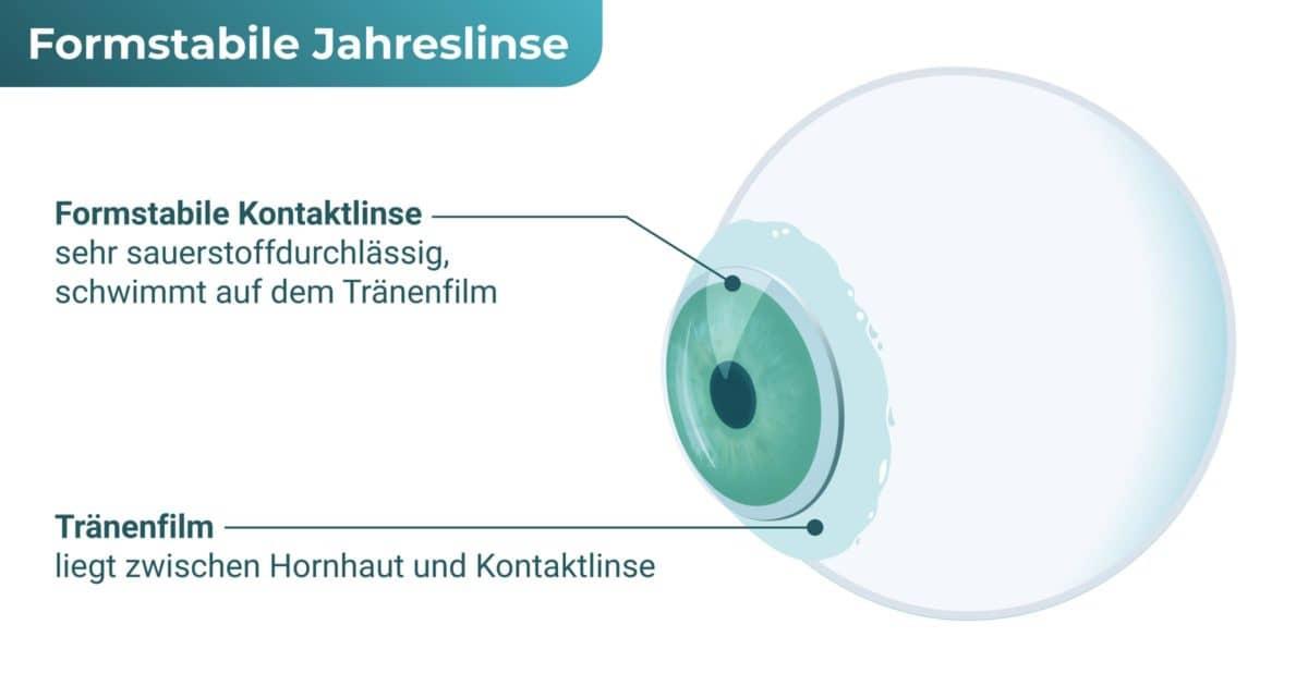 Formstabile Jahreslinse / harte Jahreslinse