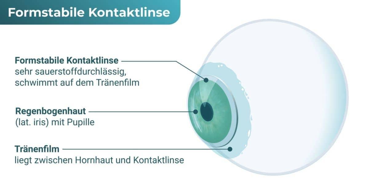 Formstabile Kontaktlinse / Harte Kontaktlinse