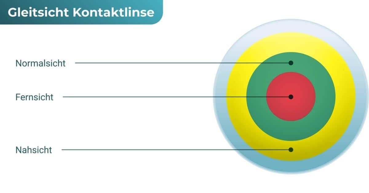 Multifokale Kontaktlinsen (Gleitsicht Kontaktlinsen)