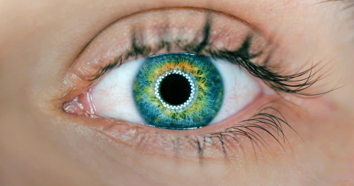 Augenkrankheit Keratokonus / Hornhautkegel