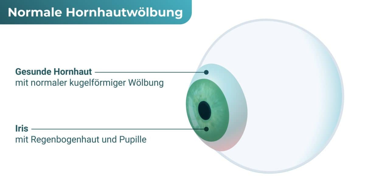 Auge ohne Hornhautkegel (Keratokonus)