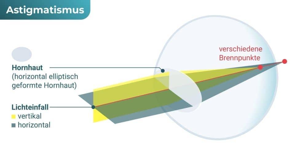 Auge mit Hornhautverkrümmung (Astigmatismus / Stabsichtigkeit)