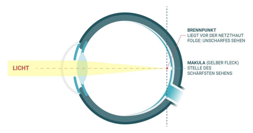 Menschliches Auge kurzsichtig (Myopie)