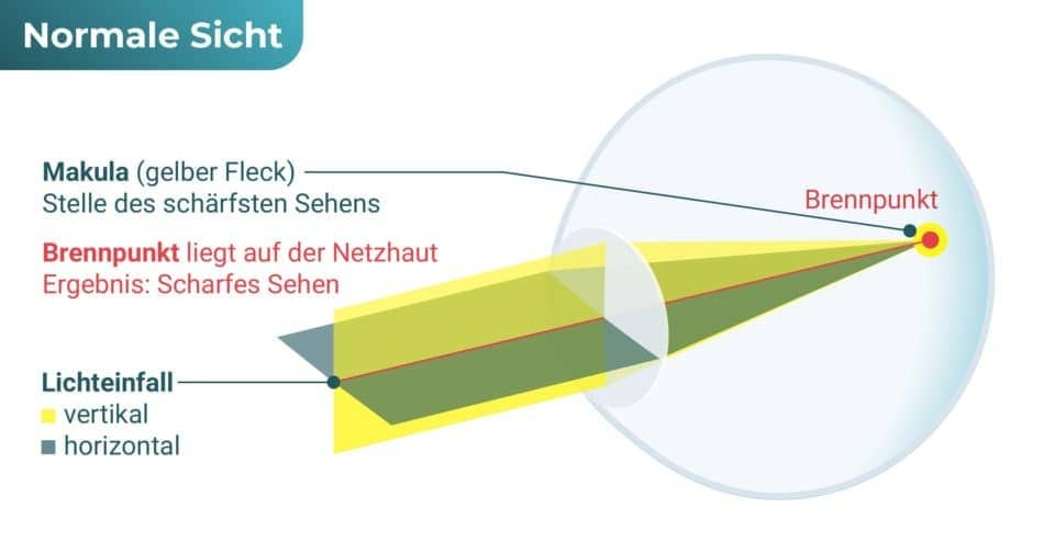 Auge normalsichtig – Kurzsichtigkeit (Myopie)