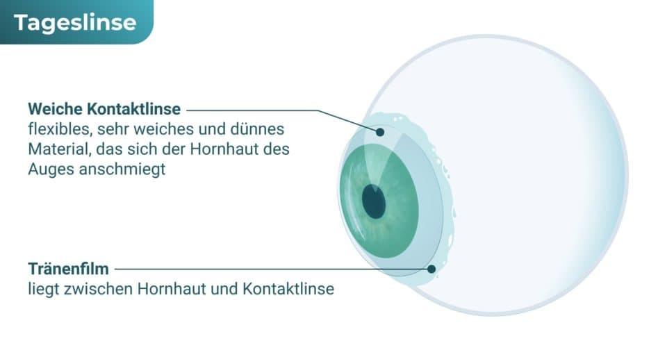 Tageslinse / Tageskontaktlinse