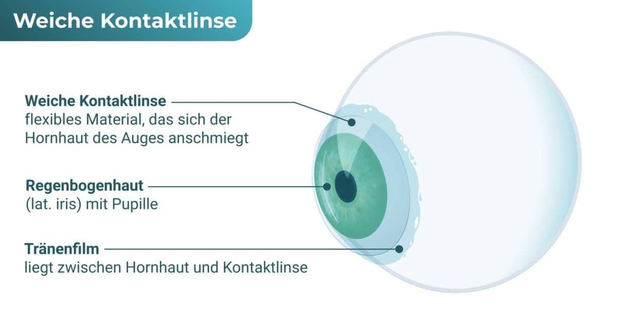 Weiche Kontaktlinse