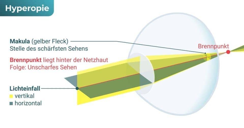 Auge fehlsichtig – Weitsichtigkeit (Hyperopie / Hypermetropie)