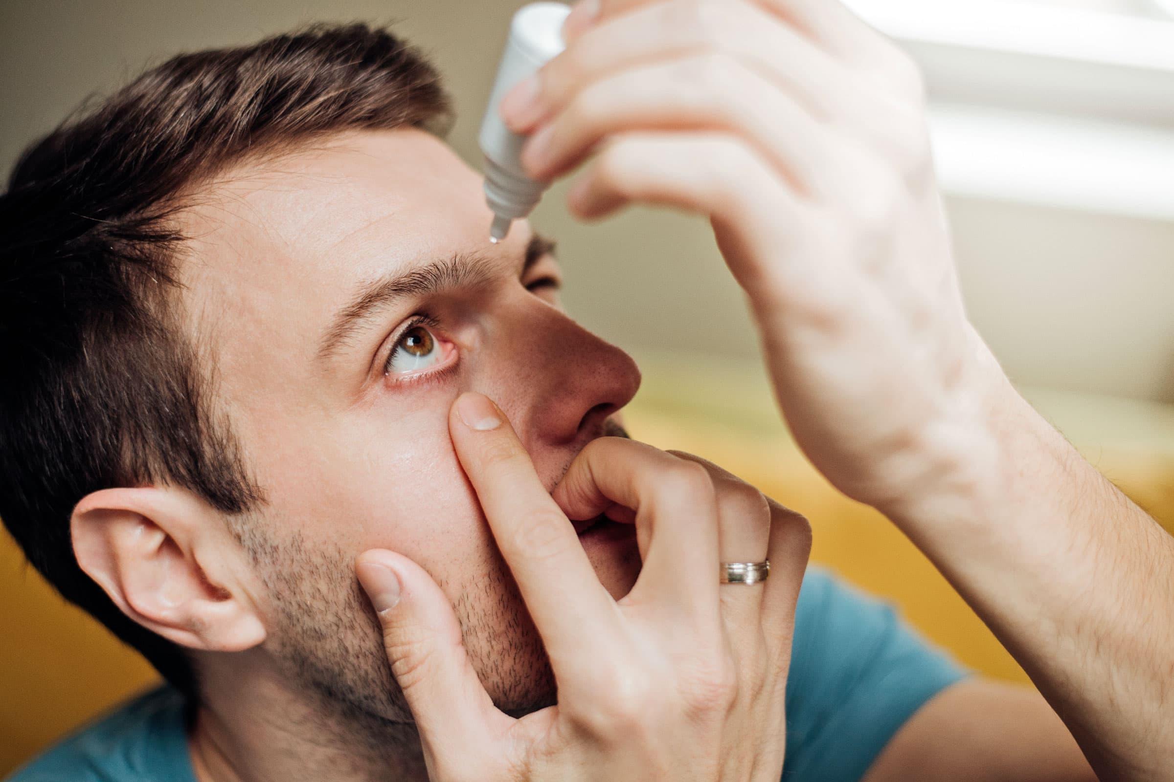 Trockene AUgen Augentropfen / Augensalbe